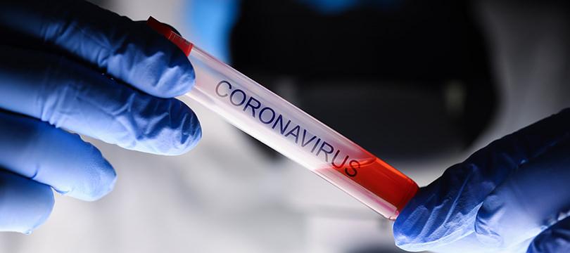 Immagine Il Vero Impatto del Coronavirus sull'Economia Italiana: l'allarme del Financial Times